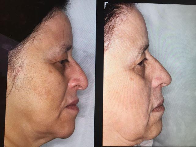 Arqueamento da ponta do nariz e leve preenchimento do dorso. Notem a fantástica mudança imediata.