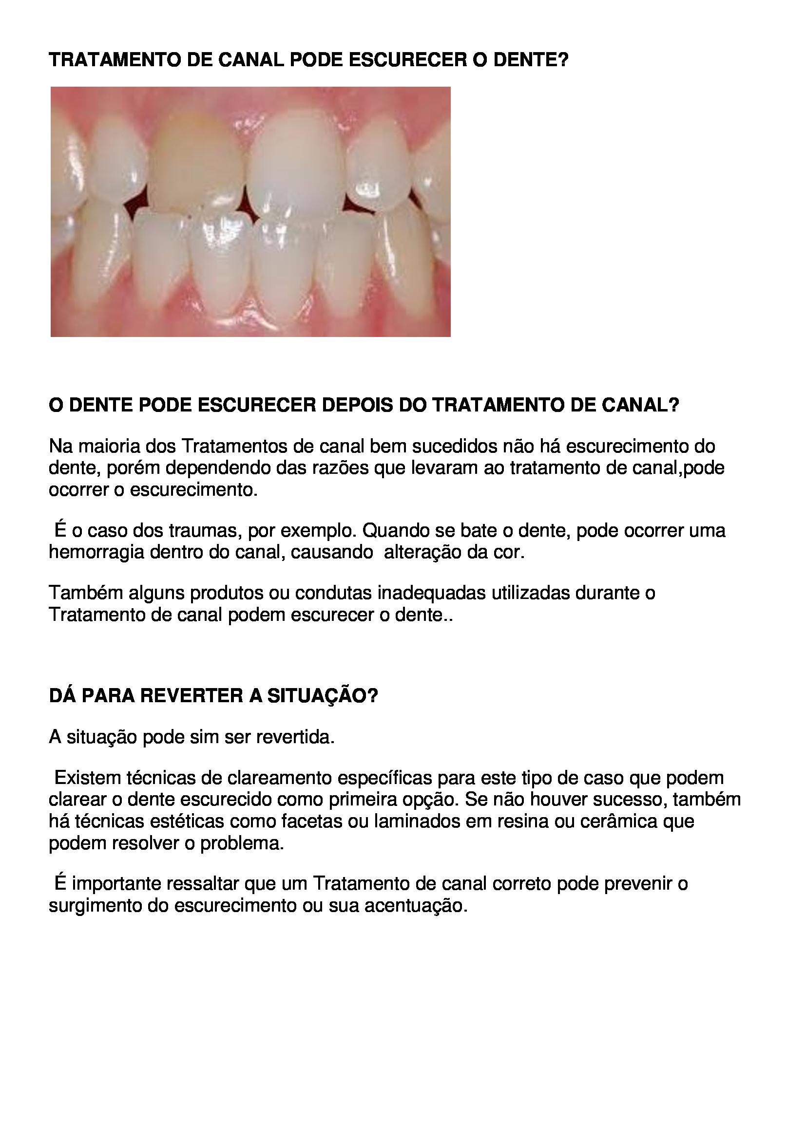 Drª Francine Saran Tratamento De Canal Pode Escurecer O Dente